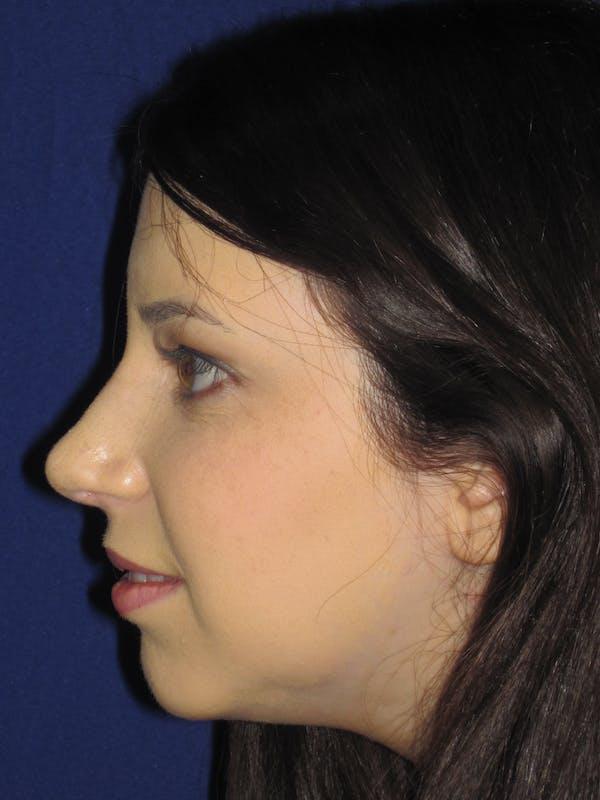 Rhinoplasty Gallery - Patient 4891356 - Image 6