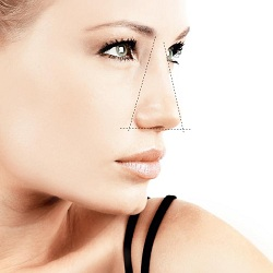 Functional Rhinoplasty Philadelphia