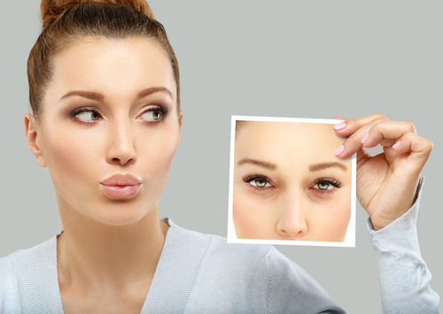 Blepharoplasty in Cherry HIll, New Jersey Blog