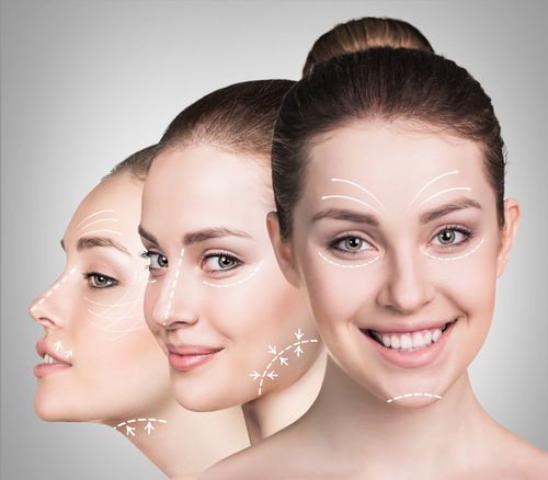 Facelift for younger patients