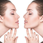Corrado Facial Plastic Surgery Blog | Functional Rhinoplasty with the Spirox Latera Implant