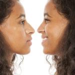 Corrado Facial Plastic Surgery Blog | What Can an Ethnic Rhinoplasty Do?
