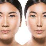 Corrado Facial Plastic Surgery Blog | How is an Asian Rhinoplasty Performed?
