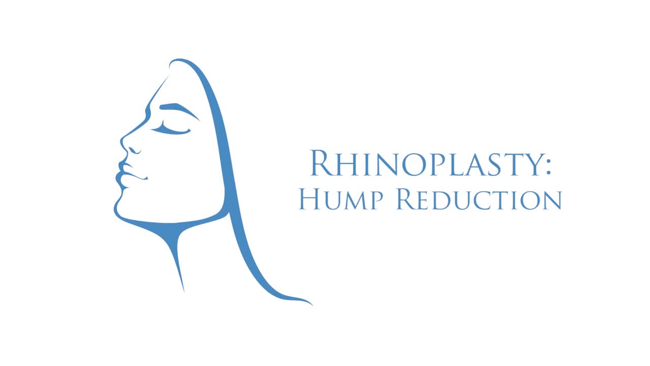 Rhinoplasty: Hump Reduction Logo