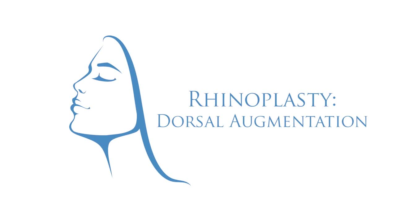 Rhinoplasty: Dorsal Augmentation