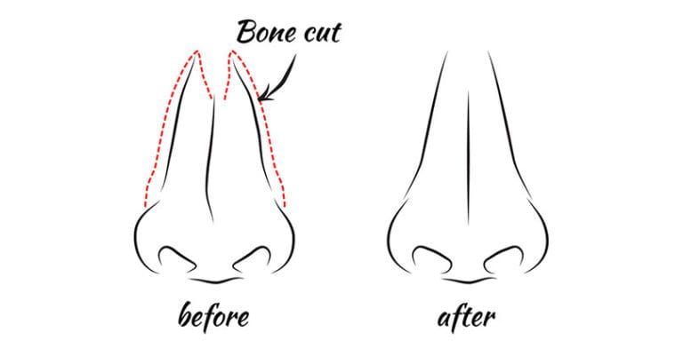 Osteotomies Diagram