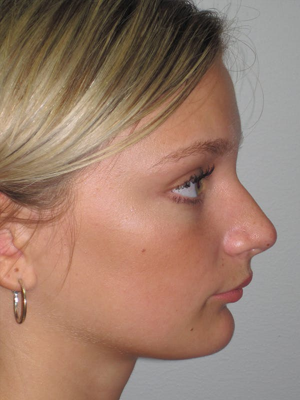 Rhinoplasty Gallery - Patient 11109877 - Image 5