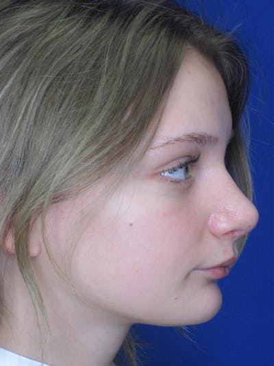 Rhinoplasty Gallery - Patient 11109877 - Image 6