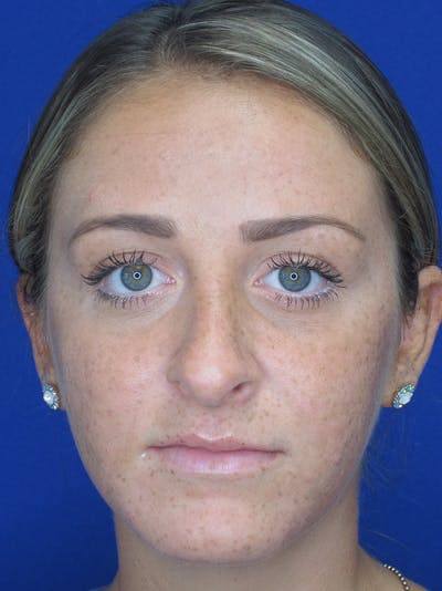 Rhinoplasty Gallery - Patient 11109880 - Image 1