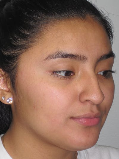 Rhinoplasty Gallery - Patient 11109883 - Image 1