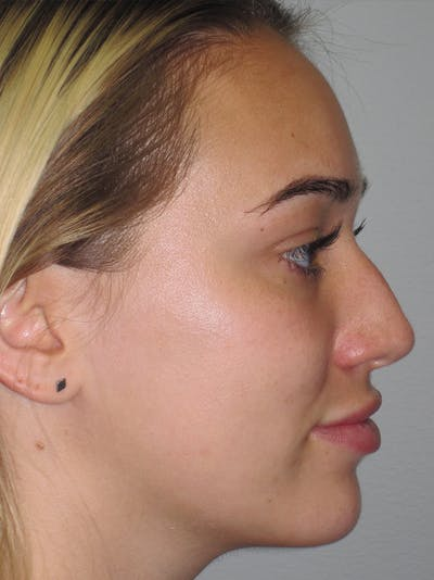 Rhinoplasty Gallery - Patient 11109881 - Image 1