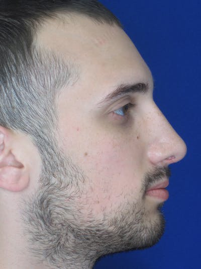 Rhinoplasty Gallery - Patient 11109882 - Image 2