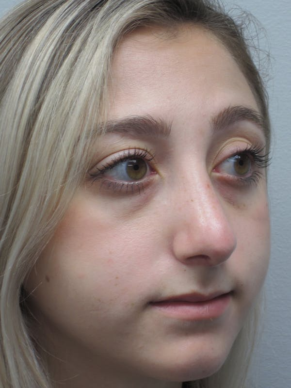 Rhinoplasty Gallery - Patient 11109884 - Image 6