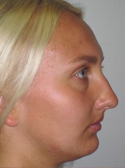 Rhinoplasty Gallery - Patient 11109885 - Image 1