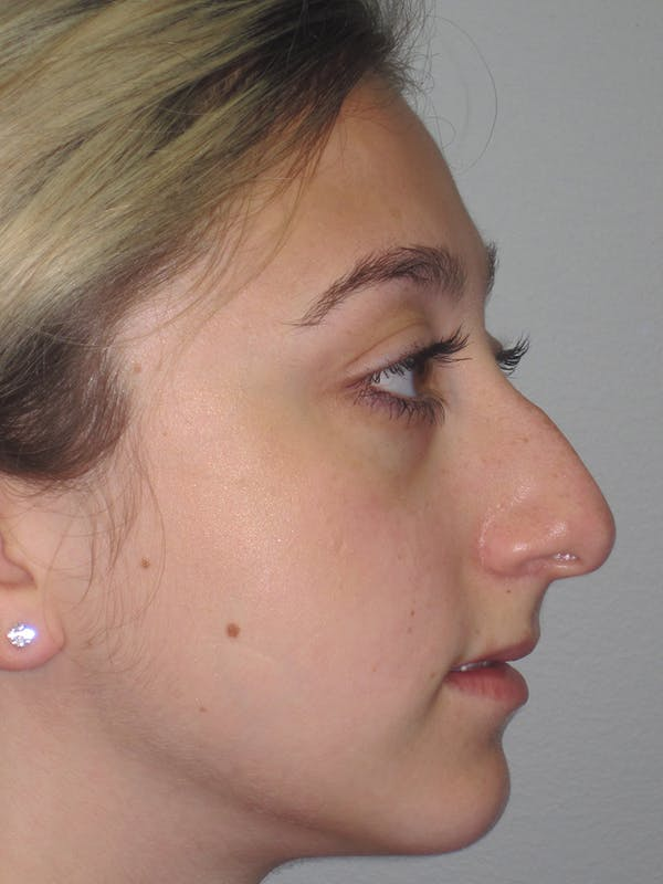 Rhinoplasty Gallery - Patient 11109884 - Image 1
