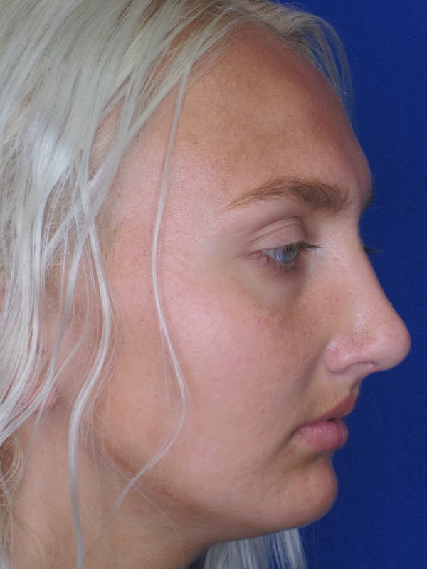 Rhinoplasty Gallery - Patient 11109885 - Image 2