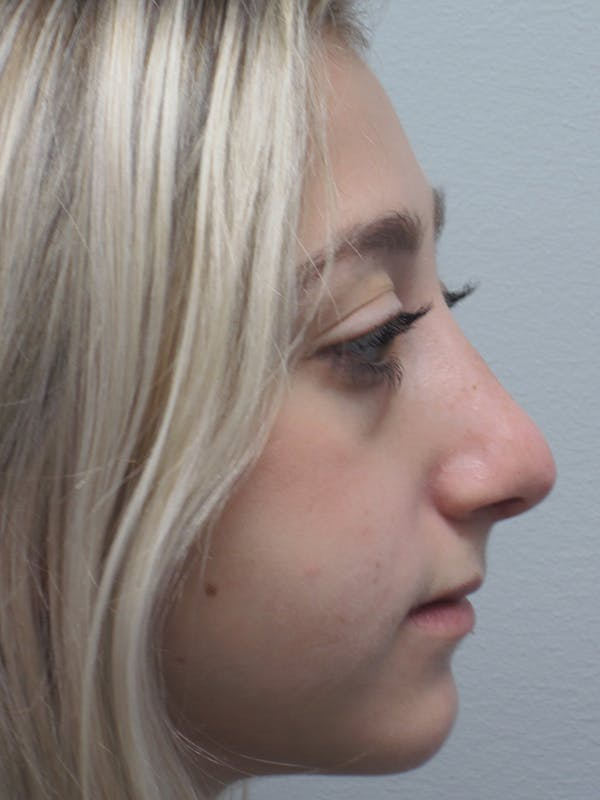 Rhinoplasty Gallery - Patient 11109884 - Image 2