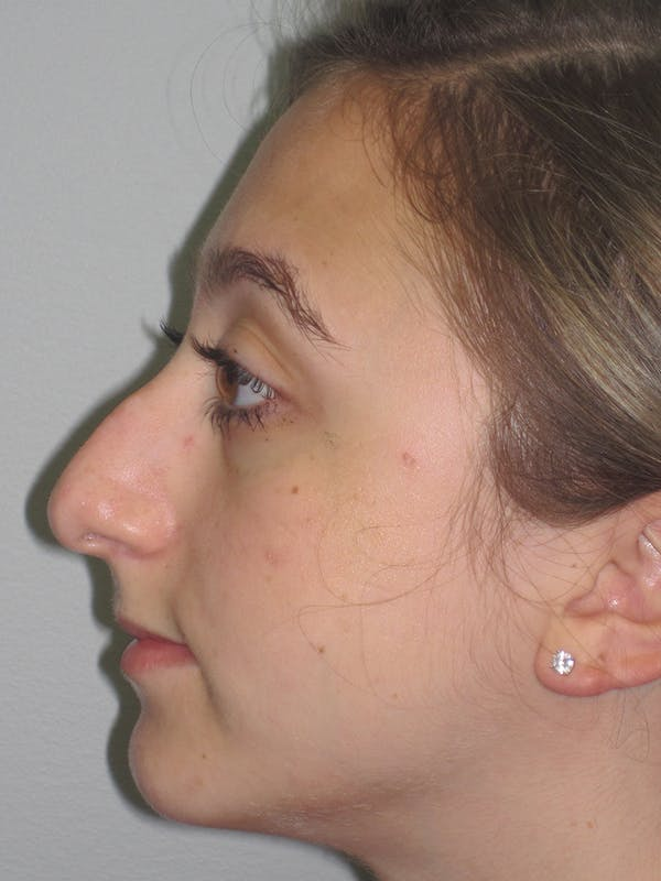 Rhinoplasty Gallery - Patient 11109884 - Image 7