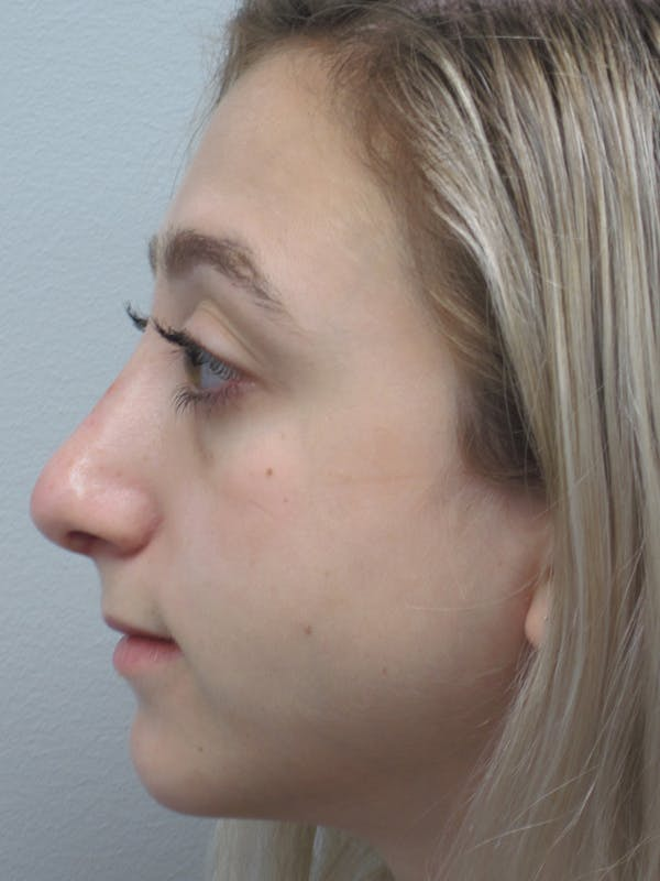 Rhinoplasty Gallery - Patient 11109884 - Image 8