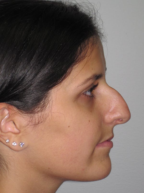 Rhinoplasty Gallery - Patient 11109886 - Image 5