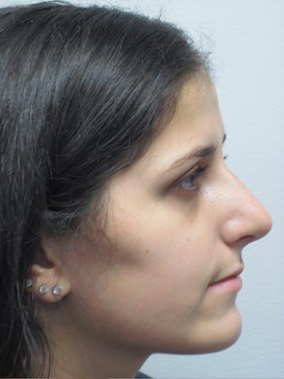 Rhinoplasty Gallery - Patient 11109886 - Image 6