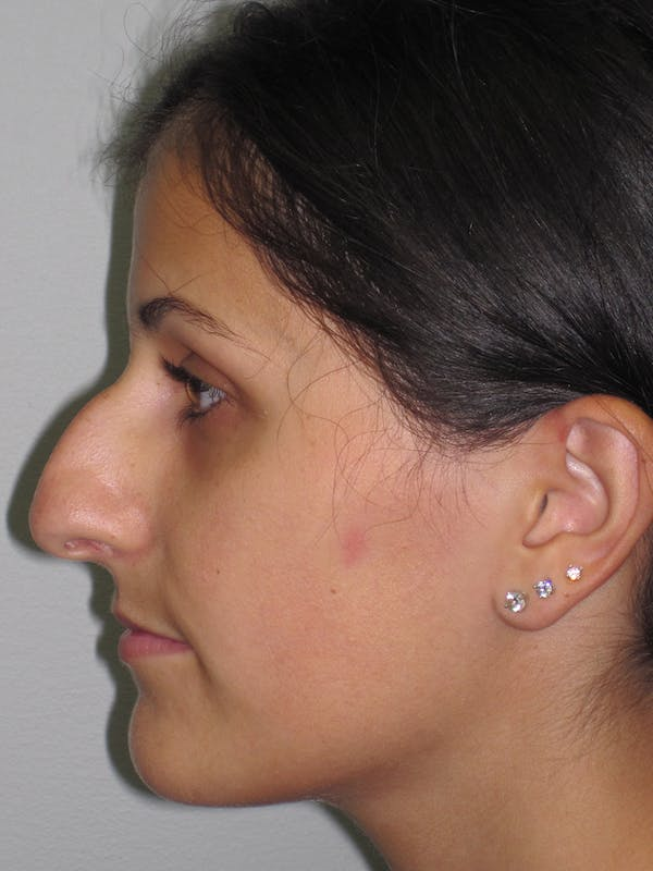 Rhinoplasty Gallery - Patient 11109886 - Image 1