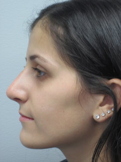 Rhinoplasty Gallery - Patient 11109886 - Image 2