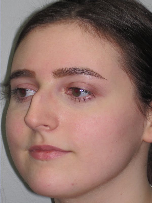 Rhinoplasty Gallery - Patient 11109911 - Image 7