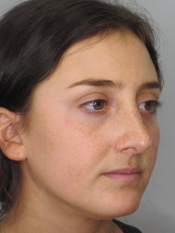 Rhinoplasty Gallery - Patient 11109910 - Image 6