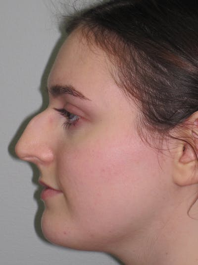 Rhinoplasty Gallery - Patient 11109911 - Image 1