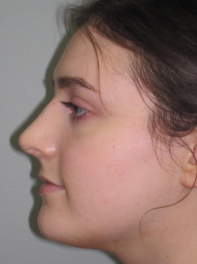 Rhinoplasty Gallery - Patient 11109911 - Image 2