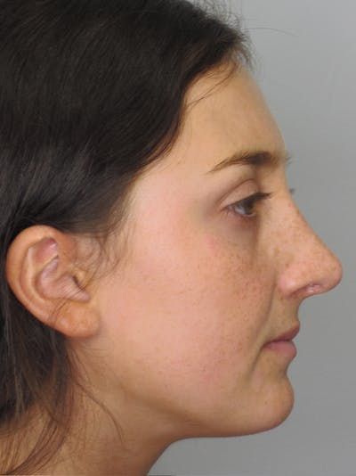 Rhinoplasty Gallery - Patient 11109910 - Image 2
