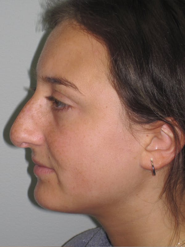 Rhinoplasty Gallery - Patient 11109910 - Image 7