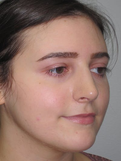 Rhinoplasty Gallery - Patient 11109911 - Image 4