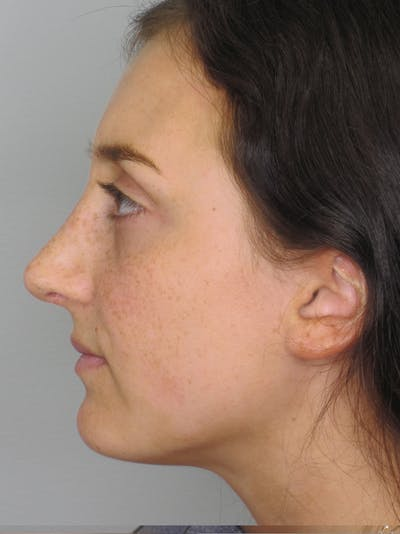 Rhinoplasty Gallery - Patient 11109910 - Image 8