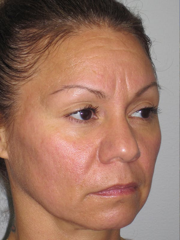 Rhinoplasty Gallery - Patient 11109912 - Image 3
