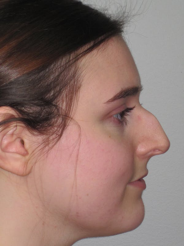 Rhinoplasty Gallery - Patient 11109911 - Image 5