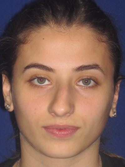 Rhinoplasty Gallery - Patient 11109913 - Image 1