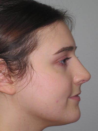 Rhinoplasty Gallery - Patient 11109911 - Image 6