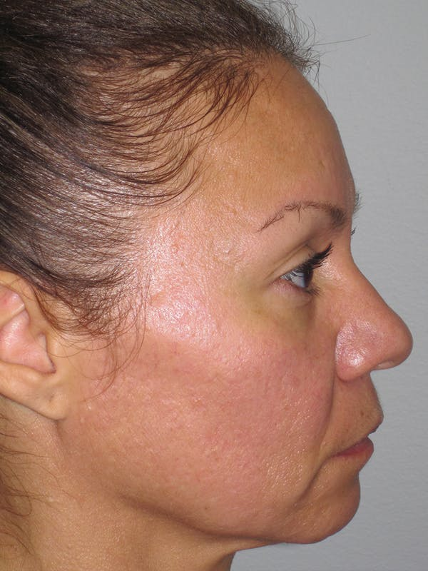 Rhinoplasty Gallery - Patient 11109912 - Image 5