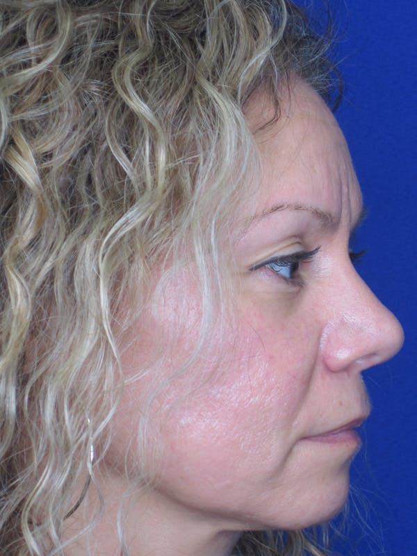 Rhinoplasty Gallery - Patient 11109912 - Image 6