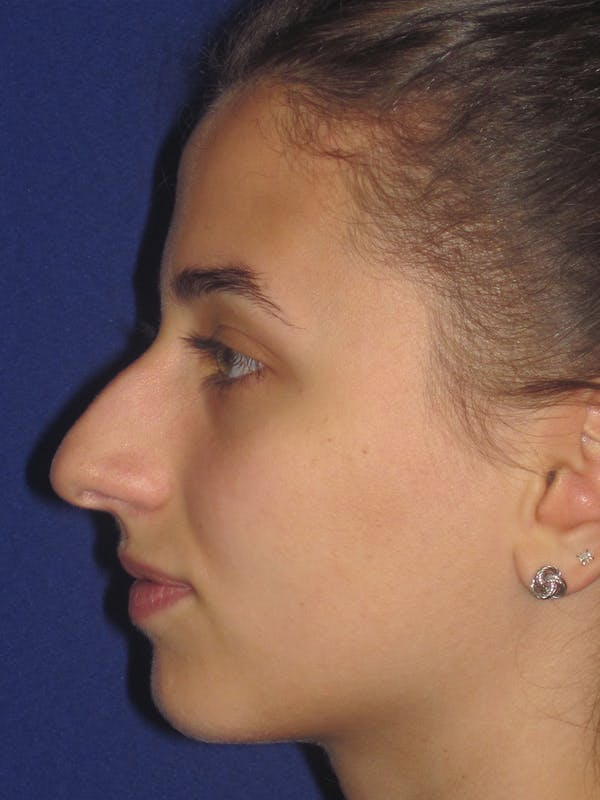 Rhinoplasty Gallery - Patient 11109913 - Image 5