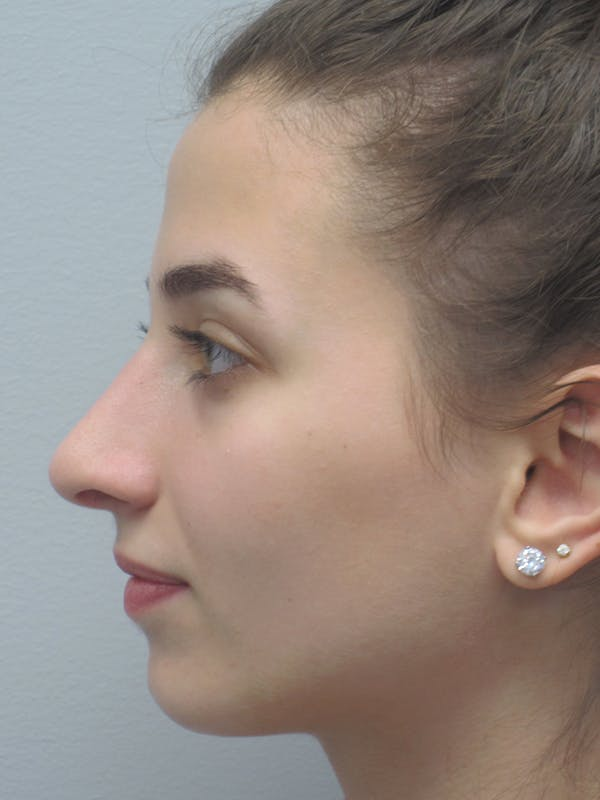 Rhinoplasty Gallery - Patient 11109913 - Image 6
