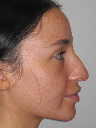 Rhinoplasty Gallery - Patient 11109914 - Image 1