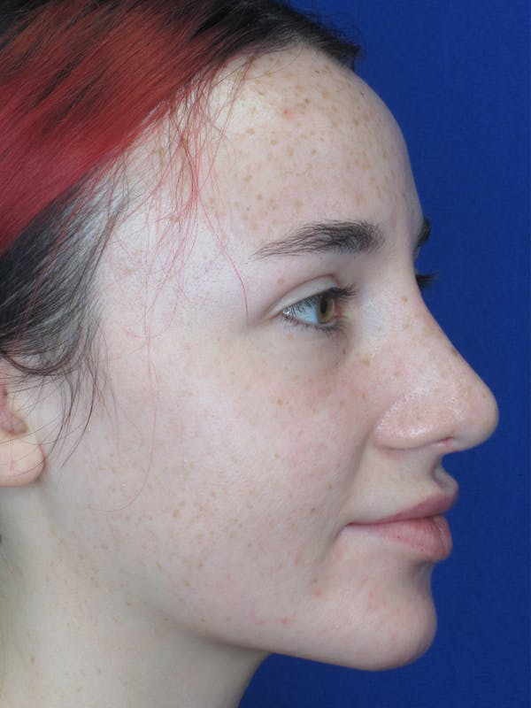 Rhinoplasty Gallery - Patient 11109914 - Image 2