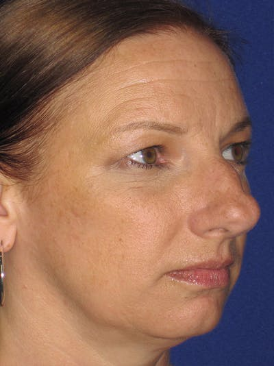 Rhinoplasty Gallery - Patient 11109915 - Image 1