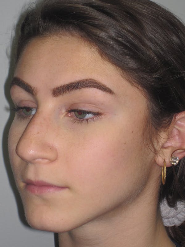 Rhinoplasty Gallery - Patient 11109916 - Image 5
