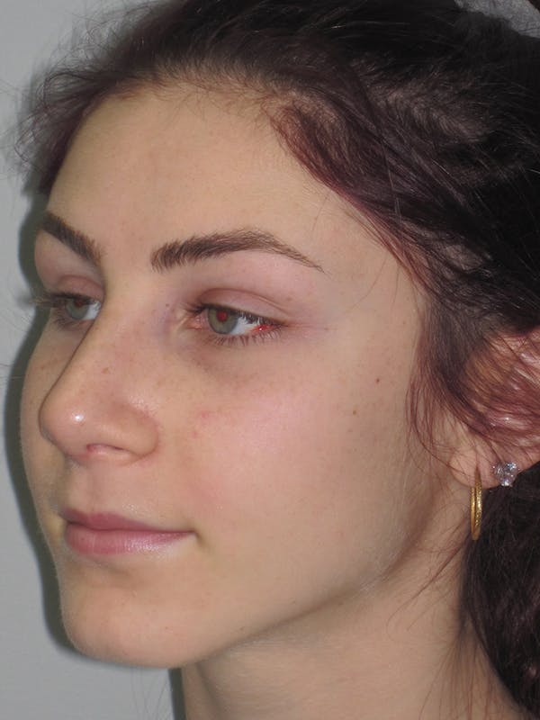 Rhinoplasty Gallery - Patient 11109916 - Image 6