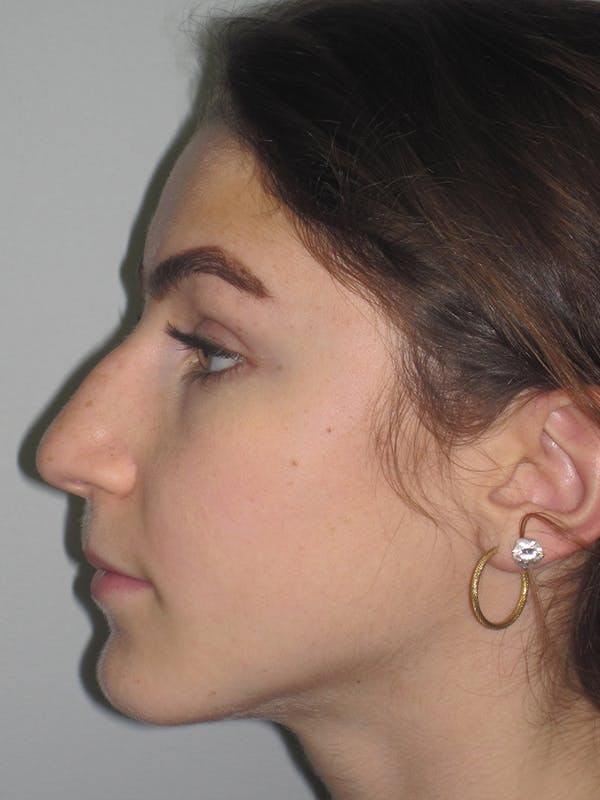 Rhinoplasty Gallery - Patient 11109916 - Image 3