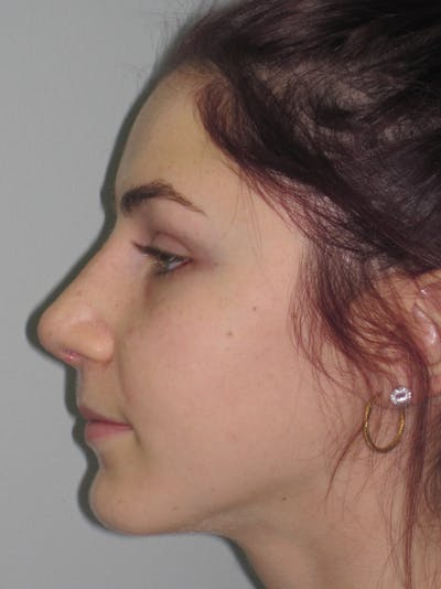 Rhinoplasty Gallery - Patient 11109916 - Image 4